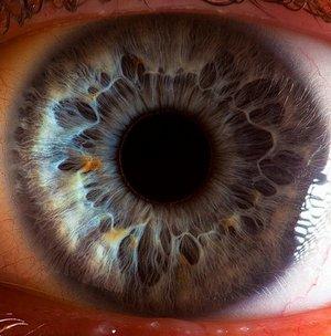 оптические протезы